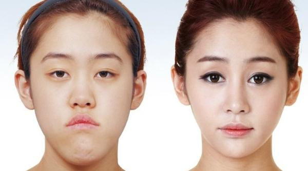 Plastic surgery & the quest for the perfect selfie in South